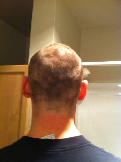 I'm too sexy for my scalp?